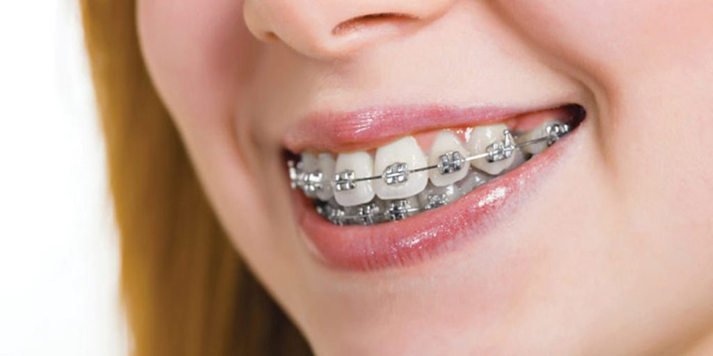 A Comparison of the Two Common Options in Braces-Metal Braces