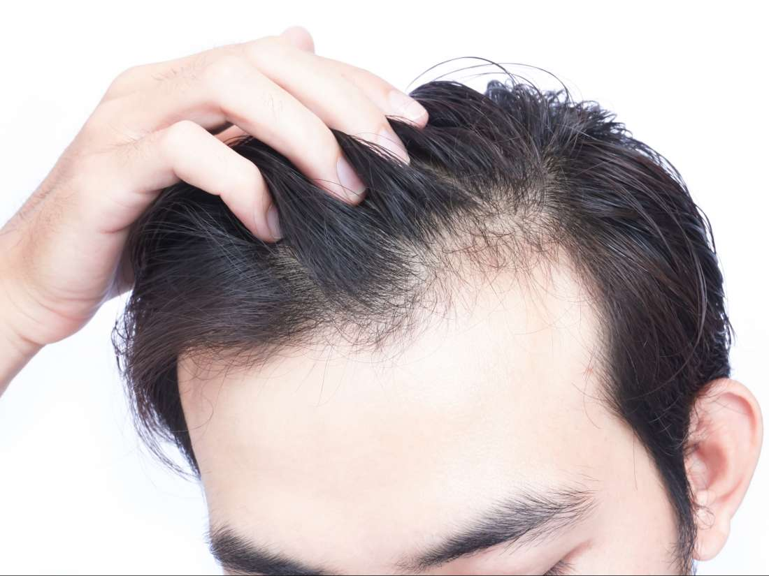 Acupuncture - Does It Affect Hair Loss?