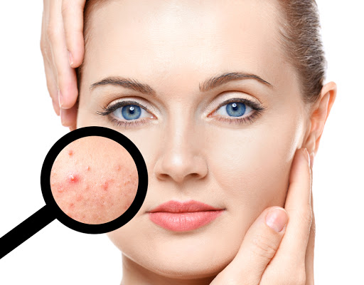 Tips to get rid of hyperpigmentation